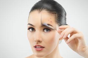 Cómo combatir el acné. La solución