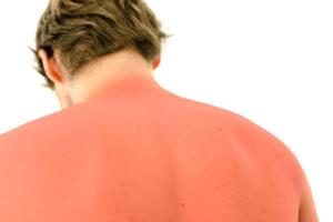 Cómo curar las quemaduras por el sol