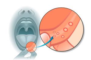 Cómo curar las llagas en la boca (aftas)