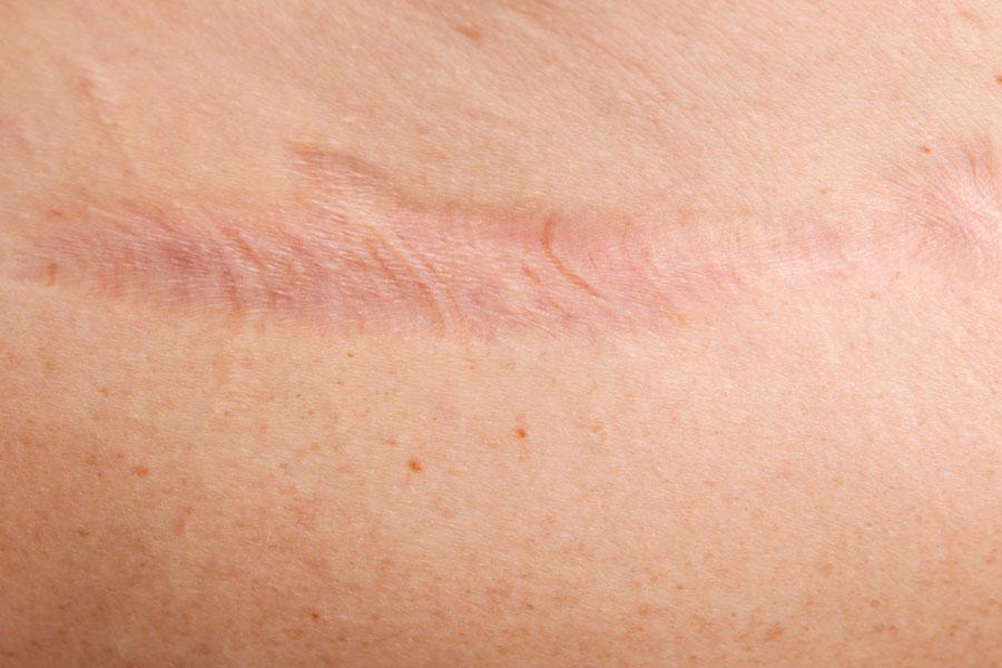 Cómo curar cicatrices