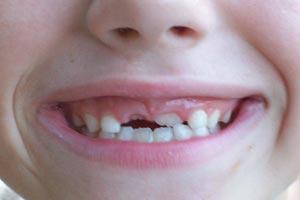 Cómo actuar al golpearse un diente