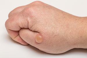Cómo curar las ampollas de manos y pies