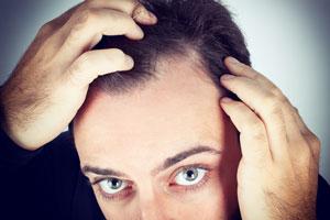 Cómo detener la caída del pelo