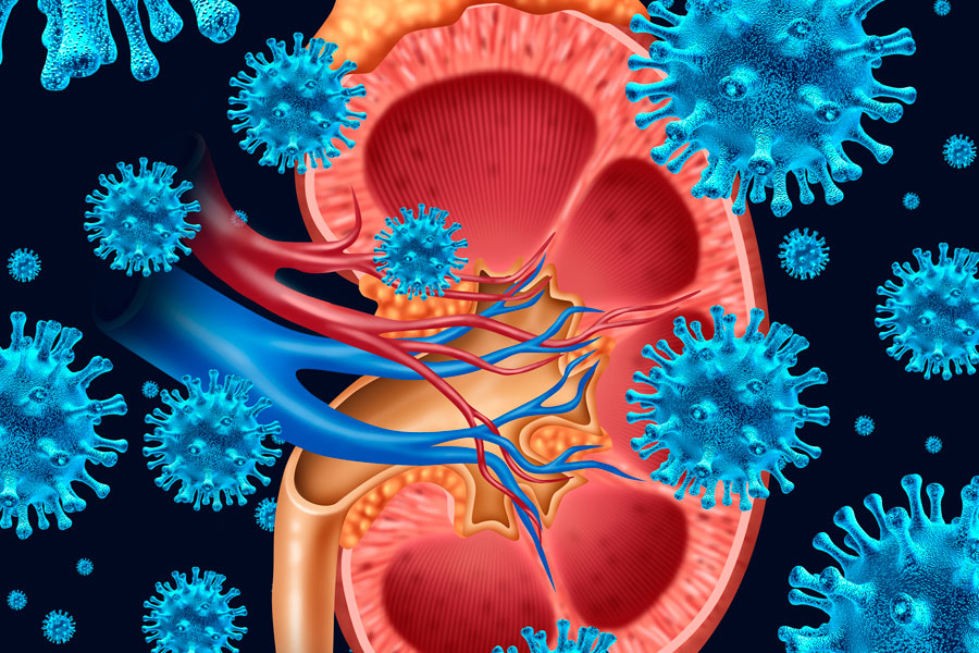 Remedios caseros para Infecciones Urinarias