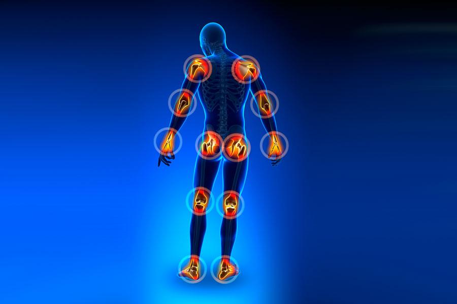 Remedios caseros para aliviar la artritis. Cómo prevenir y evitar la artritis con remedios naturales. Productos caseros contra la artritis