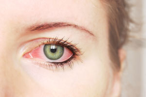 Remedios naturales para el tratamiento de la conjuntivitis