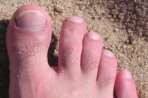 Qué es el pie de atleta y cuáles son sus síntomas