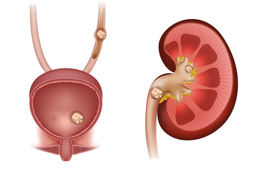 Conoce los síntomas y causas de las piedras en el riñon. Causas y señales de tener piedras en los riñones