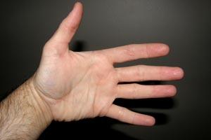 Cómo se produce el síndrome del túnel carpiano o carpal