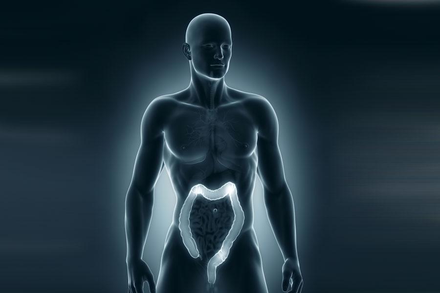 ¿Qué son las hemorroides? Conozcamos las causas y síntomas de las hemorroides, ya sean internas o externas