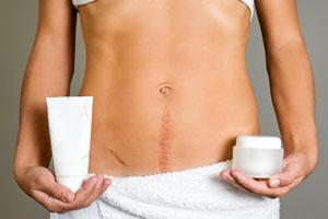 Alimentos para curar cicatrices. Como eliminar las cicatrices con remedios naturales. Alimentos e infusiones para curar cicatrices