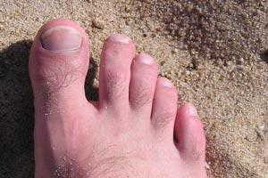 Cómo curar los hongos en los pies con remedios naturales