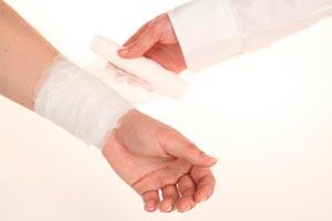 Cómo Curar las Heridas por Quemaduras