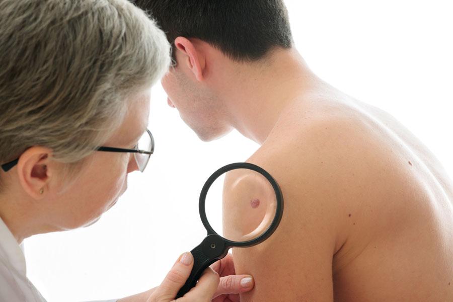 Cómo analizar la piel en busca de señales de cáncer. Previene el cáncer de piel analizando tus lunares. Cómo analizar el cuerpo y prevenir el cáncer