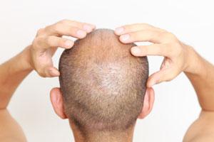 Técnicas para hacer masajes capilares en casa. beneficios de los masajes capilares. Masajes para el cuero cabelludo