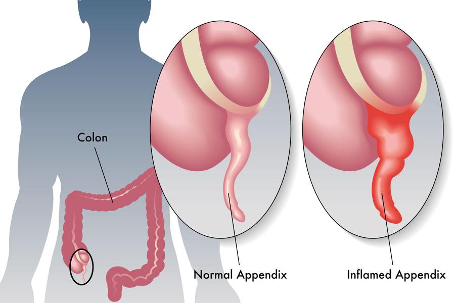 Síntomas de la apendicitis