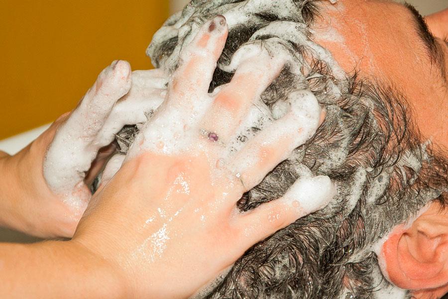 Cómo tratar la dermatitis seborreica. Consejos para curar la dermatitis seborreica. Qué es la dermatitis seborreica.