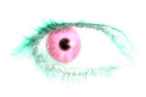 Qué es y cómo tratar la conjuntivitis