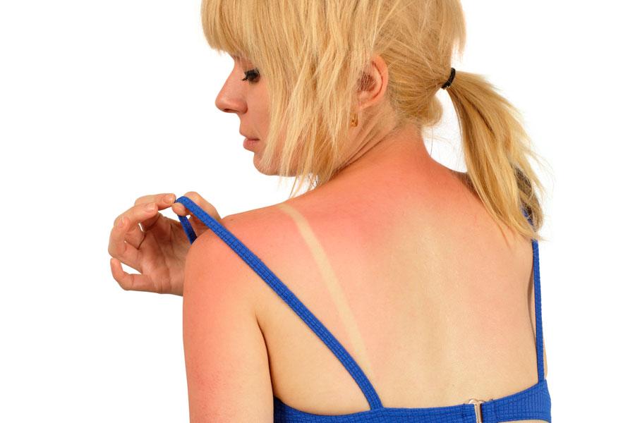 Remedios naturales para aliviar las quemaduras producidas por el sol. Cómo tratar la piel quemada por el sol. Tips para aliviar quemaduras de sol