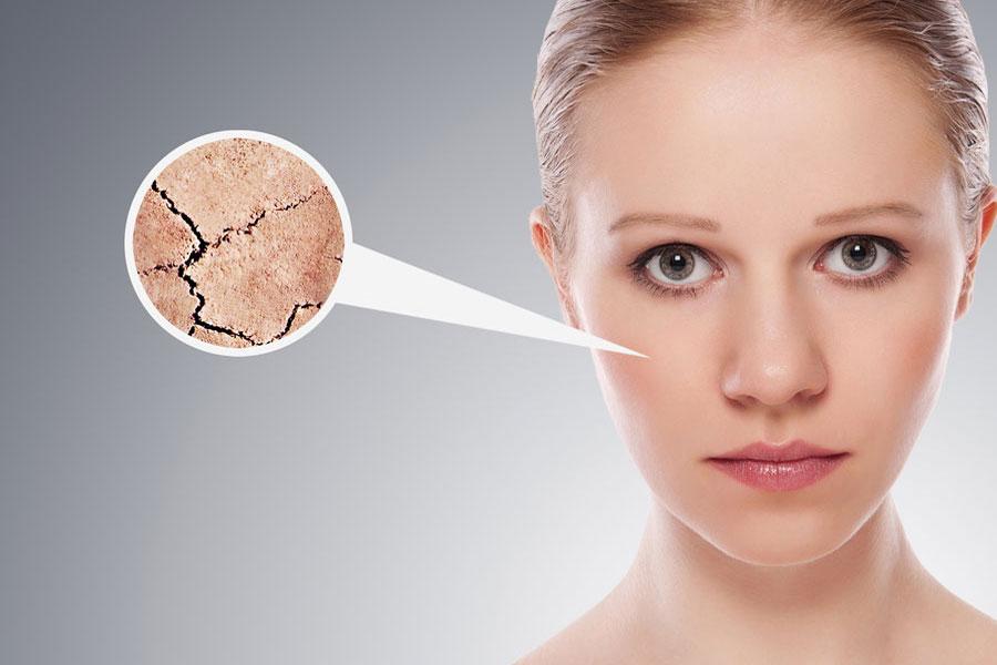 Trucos para recuperar el colágeno de la piel. Qué es el colágeno y como recuperarlo? Consejos para recuperar el colágeno del cuerpo de manera natural
