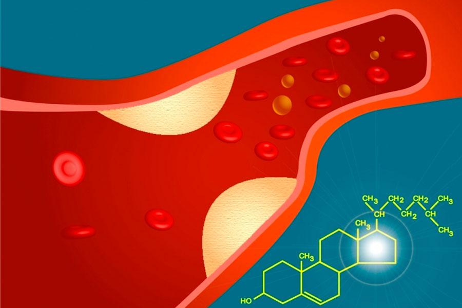 Tips para comprender qué es el colesterol. Cómo interpretar los niveles de colesterol en sangre. Detalles para saber qué es el colesterol