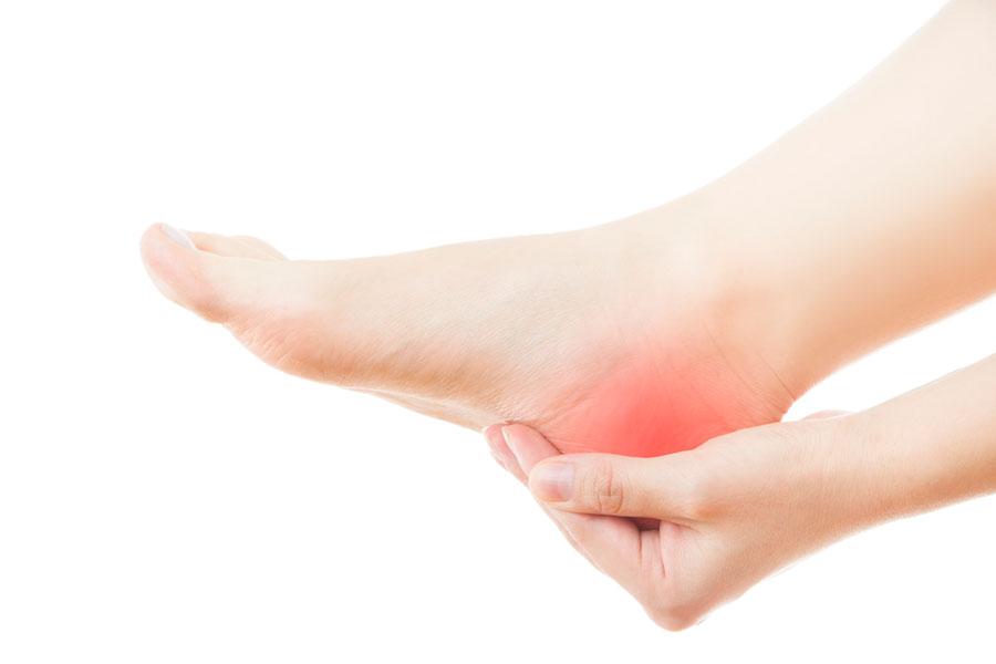 Cómo aliviar el dolor en los talones. Remedios naturales para aliviar la talalgia. Qué es la talalgia. Tratamientos naturales para la talalgia